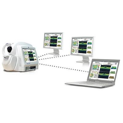 Когерентный томограф Cirrus HD-OCT 500